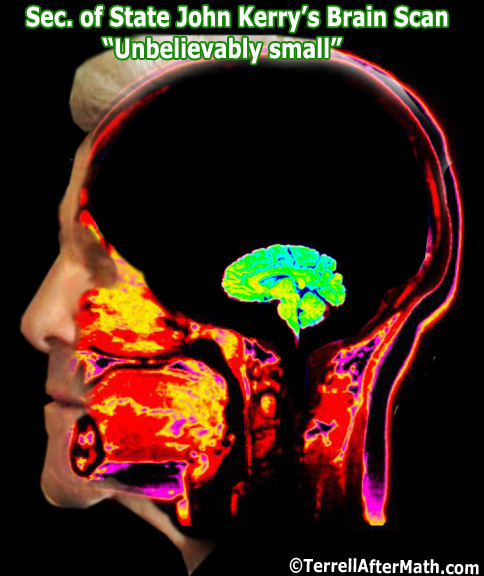 John Kerry Brain Scan SC