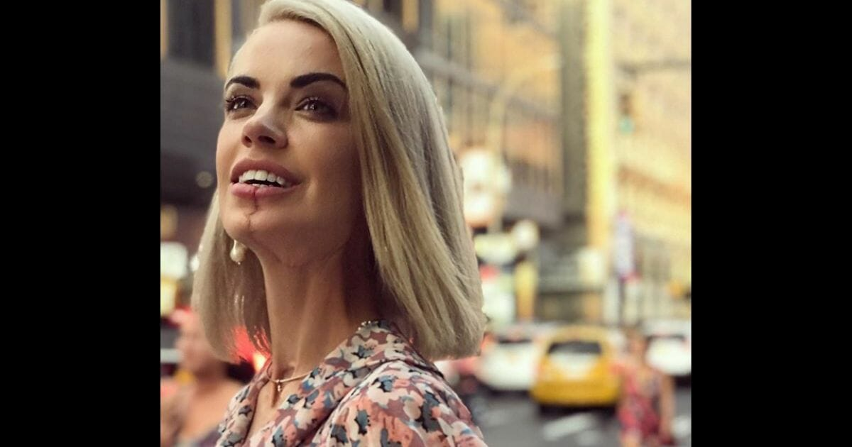 Singer Loses Half Her Tongue to Cancer But that Doesn't Stop Her from Praising God