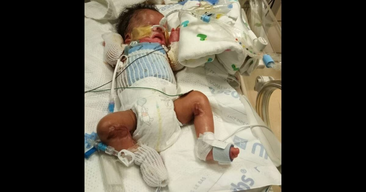 Infant Born Without Skin Gets Life-Changing Procedure, Mother Can Finally Hold Him
