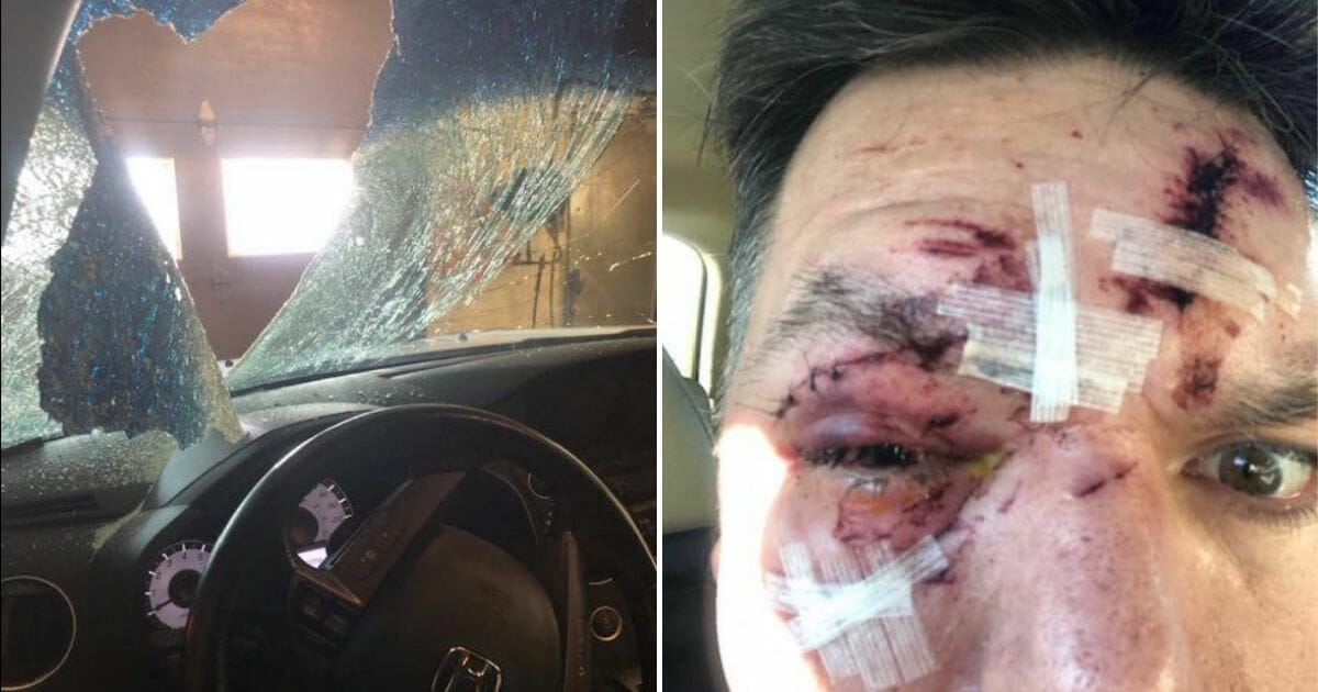 Man Issues Warning After He Says Ice from Another Car Shattered Windshield, Striking Him in Face