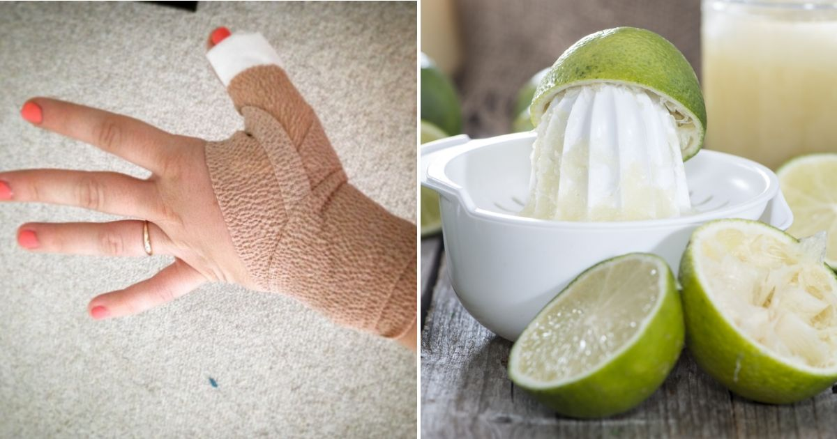 If You Go Outside After Handling Limes, Your Skin Might Blister Due to Phytophotodermatitis